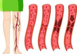 Darstellung der Venen bei Thrombose