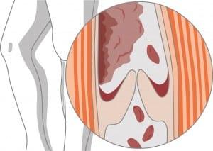 Verschluss der Blutbahn durch Ablagerung