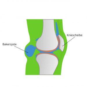 Darstellung Baker-Zyste