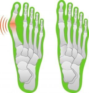 Darstellung eines Hallux-valgus-Fußes