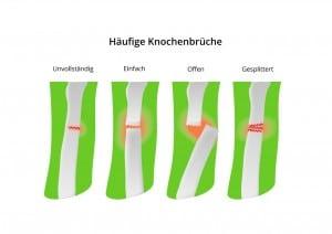Darstellung Knochenbruch-Arten