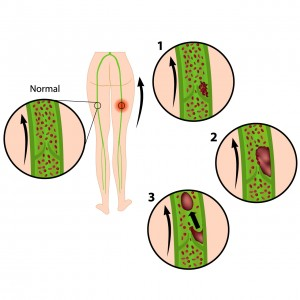 Darstellung Blutgerinnsel