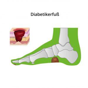 Darstellung Diabetikerfuß