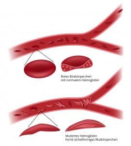 fussschmerzen-durchblutungsstoerung