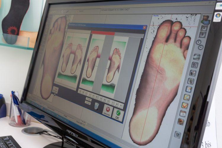 Bildschirm bei Fußdruckmessung.