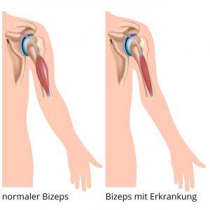 Darstellung Muskelerkrankung