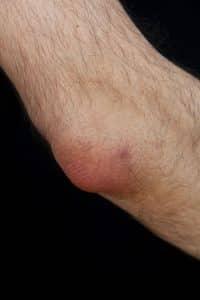 geröteter Ellbogen aufgrund einer Schleimbeutelentzündung