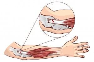 Darstellung Sehnenentzündung