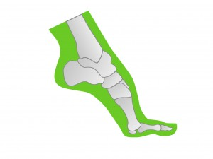 Darstellung Fußfehlstellung Spitzfuß