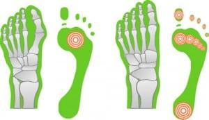 Gesunder Fuß im Gegensatz zu Spreizfuß