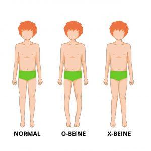 Ansicht X- und O-Beine