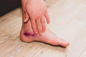 Bluterguss (Hämatom) am Fuß