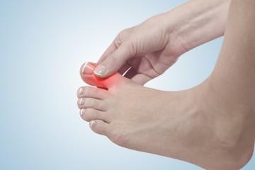 Fußschmerzen, die durch Hammerzehen entstehen, können durch das Tragen orthopädischer Einlagen gelindert werden.