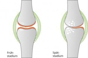Darstellung Kniegelenksarthrose